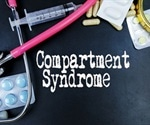 Compartment Syndrome Treatment