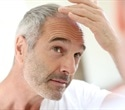 Genes that control the immune system may play role in hair graying