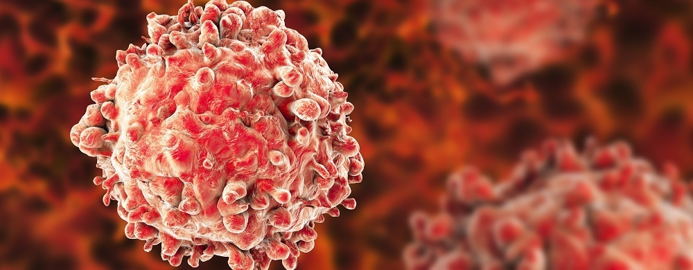 Researchers complete genomic map of chronic lymphocytic leukemia