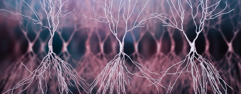 New tool predicts the lifetime risk of Alzheimer's
