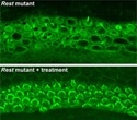 Hearing partially restored in deaf lab mice using novel therapy