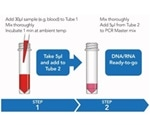 A Novel Blood Processing Technology for Simple and Rapid Molecular Diagnosis of Candidiasis