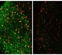 Scientists identify immune cells that remove degenerating neurons after brain injury