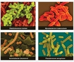 Can Phytochemicals be used against Resistant Bacterial Strains?