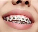 New orthodontic bracket bonding adhesive protects tooth surfaces from decay