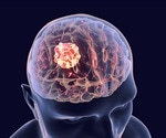 Toxin-nanoparticle combo inhibits brain cancer invasion while imaging tumors