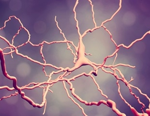 Scientists use new drug discovery system to target Huntington's Disease