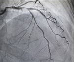 Imaging beyond routine angiography may be helpful in women with suspected MI and no obstructive CAD