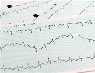 Family history in blacks, Latinos associated with higher risk of AFib