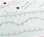 Scientists identify biomarkers to predict risk of atrial fibrillation