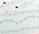 Natural substances in Chinese medicinal plant can trigger heart arrhythmias