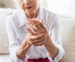 People who suffer arthritis also suffer double the amount of medical costs