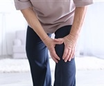 Worsening of quality of life in people with knee osteoarthritis associated with several risk factors