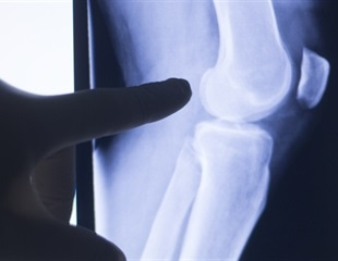 Research suggests new way to improve the efficacy of arthritis drug