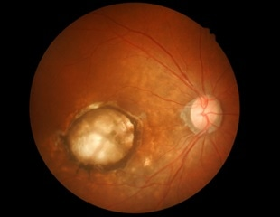 Scientists discover promising drug target for dry age-related macular degeneration