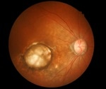Diabetic eye disease on the rise
