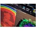 Kobe Proton Center starts clinical application of RayStation 7