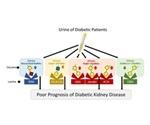 Okayama University research could improve prognosis of diabetic kidney disease