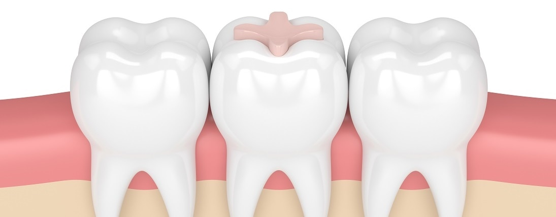 The Advantages of Using Glass Ionomers in Dentistry