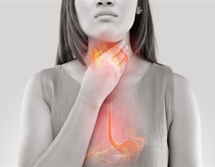 Gastroesophageal reflux disease may affect nearly a third of U.S. adults every week