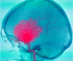 First genetic marker to help identify ruptured brain aneurysm