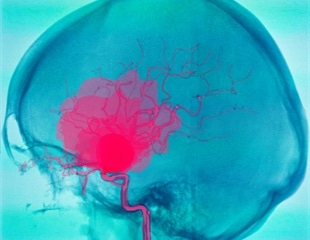 Novel biomaterial shows promise in  treating cerebral aneurysms