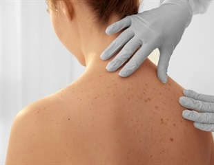 Melanoma could soon be detected using a blood test