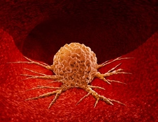 New probe allows identification of cancer stem cells in situ