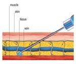 Infusion Pumps That Sense the Drug Flow