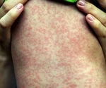 Measles cases on the rise in Europe