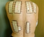 Allergy Patch Testing