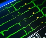 Free online Heart Age Test reveals likelihood of having a heart attack