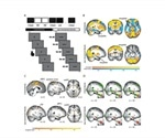 Eye-movement intervention reduces amygdala activity during recall of traumatic memory
