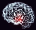 Alzheimer's disease researchers makes significant breakthroughs