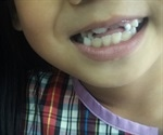 When Should Children Get Their Adult Teeth?