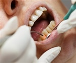 Hard Tissue Lasers in Dentistry