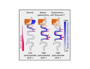 Gastric Bypass News Research