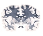 Advances in Whole Mount Brain Imaging