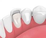Dental Veneers: Procedure and Safety