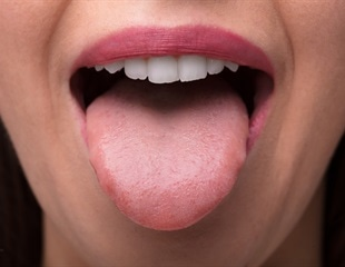 Microbes on the tongue could be used to diagnose pancreatic cancer