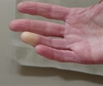 FDA guides Apricus Bio on RayVa's approvability for Raynaud's syndrome secondary to scleroderma