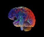 AI could predict Alzheimer's disease six years prior to diagnosis