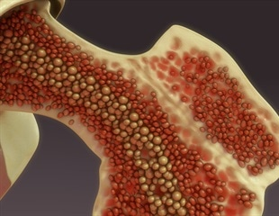 Scientists discover new blood vessels in bone