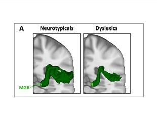 Study delves deeper into developmental dyslexia