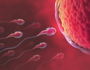 One reason behind frequent miscarriages could be faulty sperms