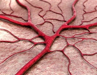 Blood vessels can now be created perfectly in a petri dish