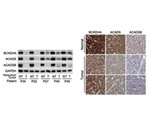 Branched-chain amino acids in tumors can be targeted to prevent and treat cancer