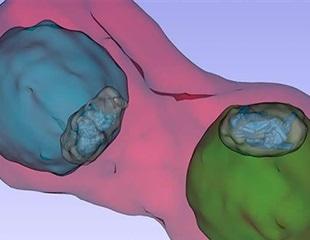 Malaria parasite with Quinoline drug investigated in-vivo