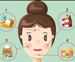 Diet a significant factor in acne outbreaks, finds pioneering new study