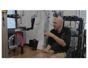 Electrical brain implants enable patient to have 'mind control' of motorized prosthetic arms
